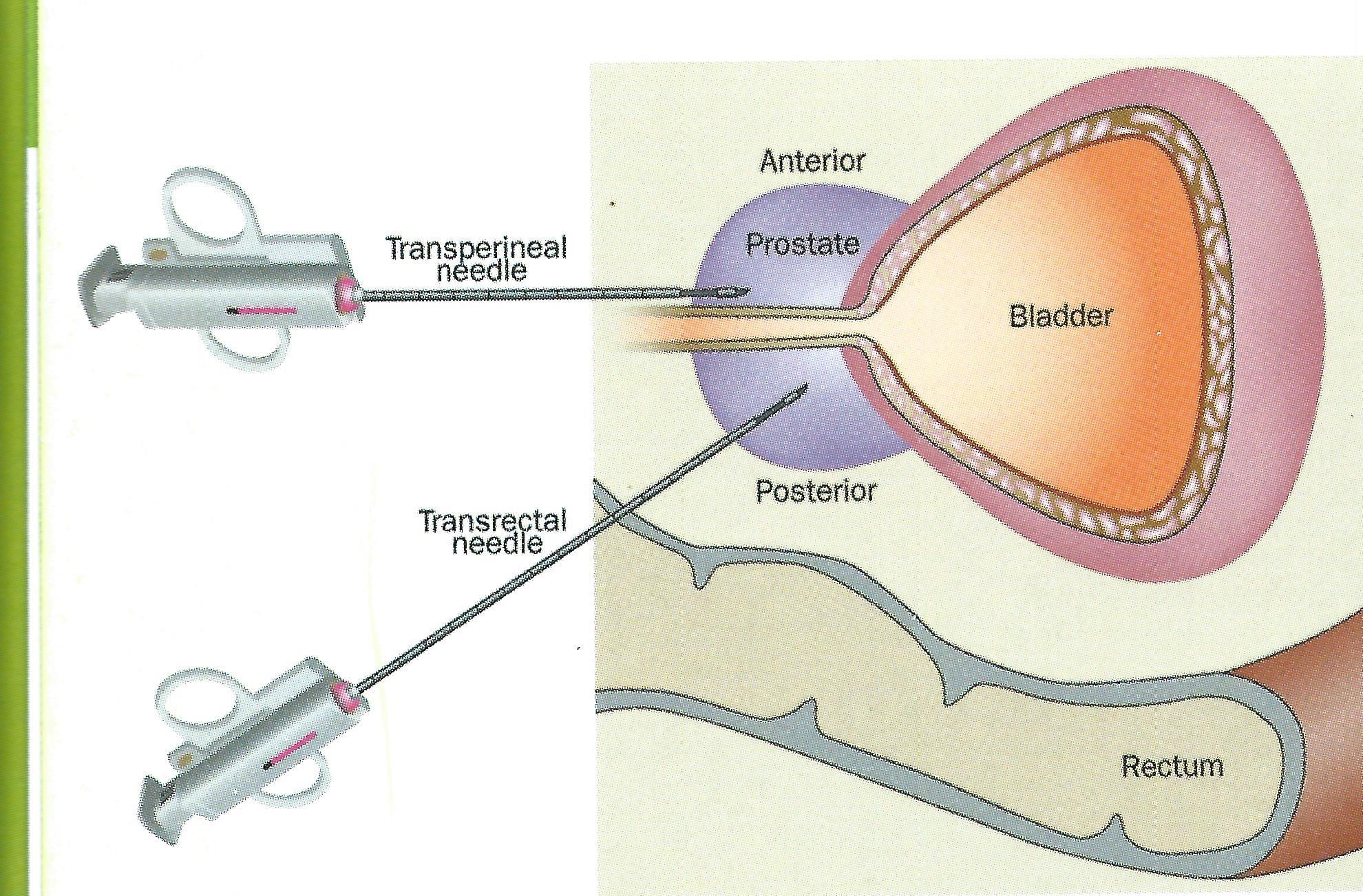 biopsia-perineal-guiada-mediante-fusion