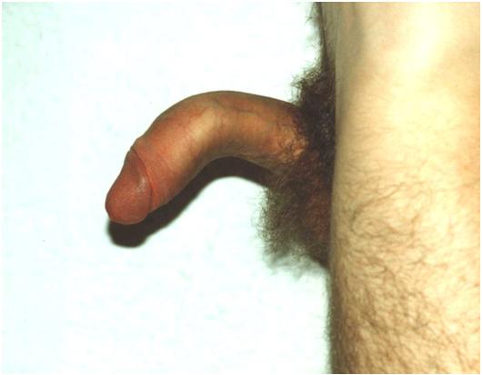 incurvación de pene