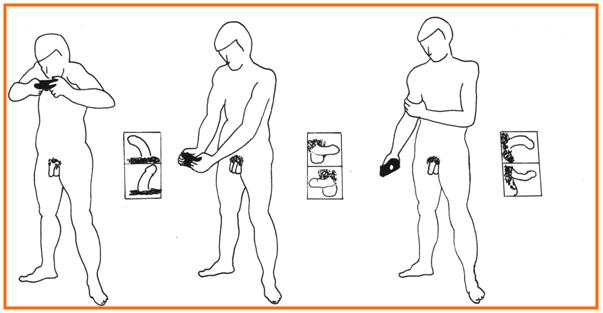 incurvacion-pene-diagnostico