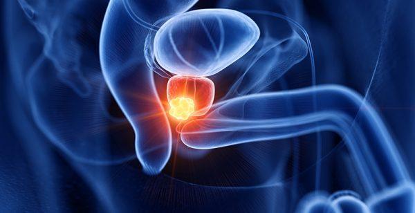 Simulación cáncer de próstata zaragoza